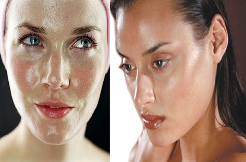 Read more about the article Oily Skin | Greasy Skin.