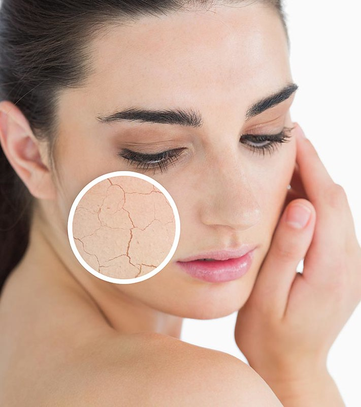 Read more about the article Best Dry skin routine and treatment.