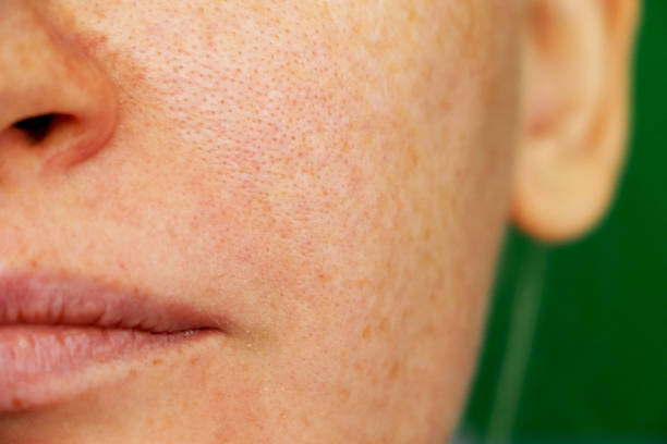 Read more about the article Open Pores: Causes and Treatment.