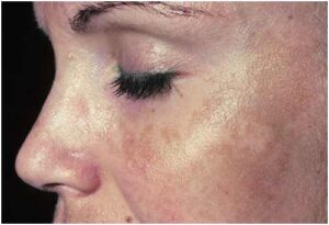 Read more about the article pigmentation skincare | pigmentation on face.